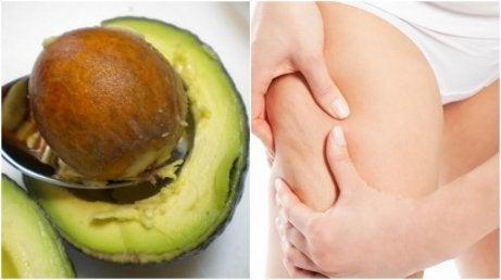 Använd avokadokärnor för behandling av celluliter