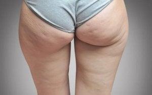 Celluliter kan orsakas av vätskeretention