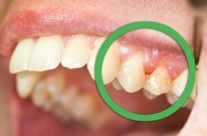 Gingivit påverkar tandköttet