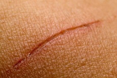 Läk huden snabbare