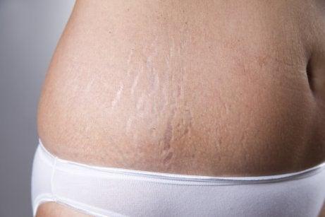 Motverka hudbristningar