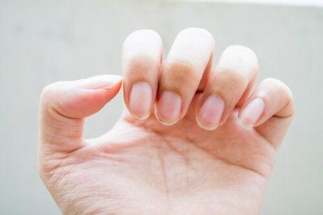 Sprickor i naglarna
