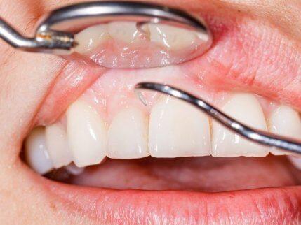 Undvik problem i munnen