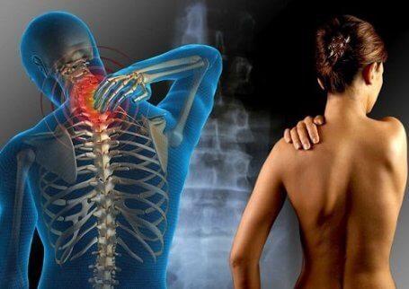 Viktiga saker du bör veta om fibromyalgi