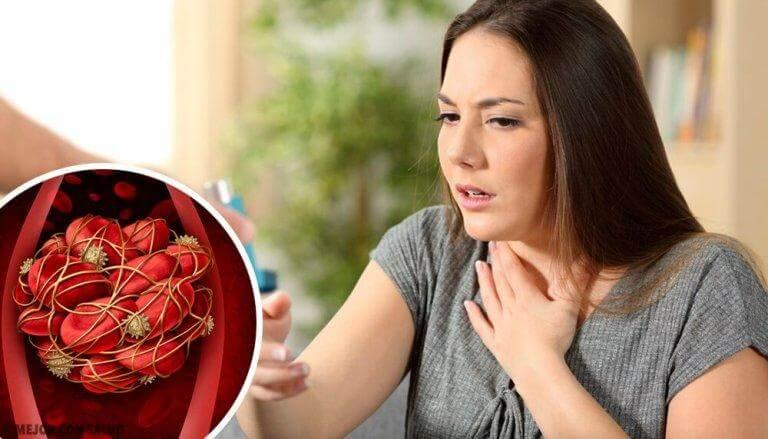 Se upp för dessa symptom på blodpropp