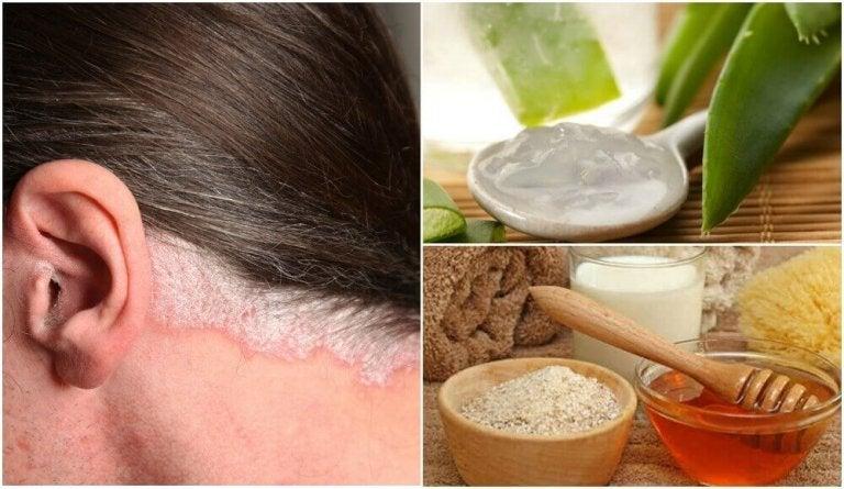 5 huskurer för psoriasis på skalpen