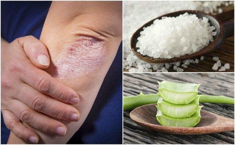 Bekämpa svampinfektioner med 5 naturliga lösningar