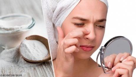4 masker med bikarbonat mot pormaskar