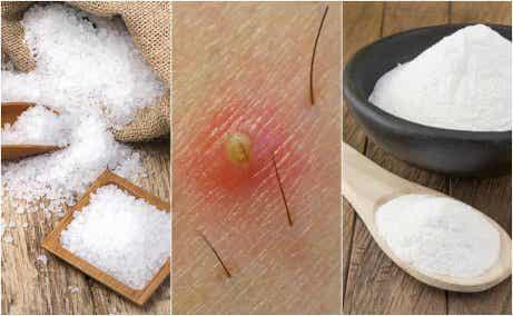 5 naturliga lösningar för inåtväxta hårstrån