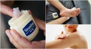 Medicinska användningar för vaselin