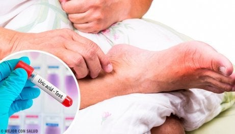 Fem vanliga orsaker till hög urinsyra