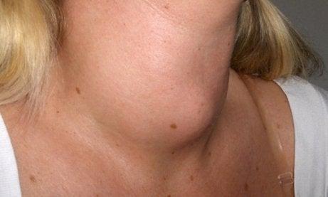 Kvinna med svullen hals