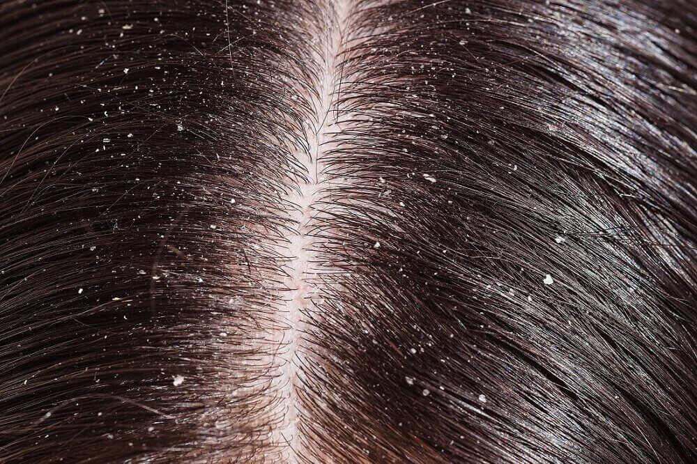 Mjäll vid hårbotten