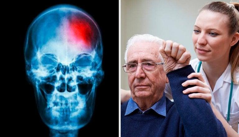 Vad är en mini-stroke? Tips för att upptäcka det