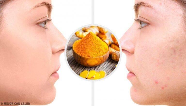 Ansiktsmask med gurkmeja mot akneärr