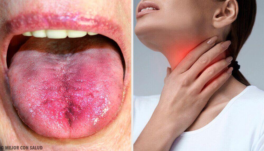 ont i halsen behandling