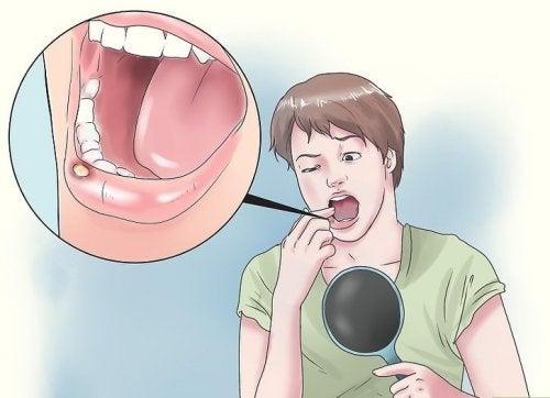 8 naturliga huskurer för blåsor i munnen