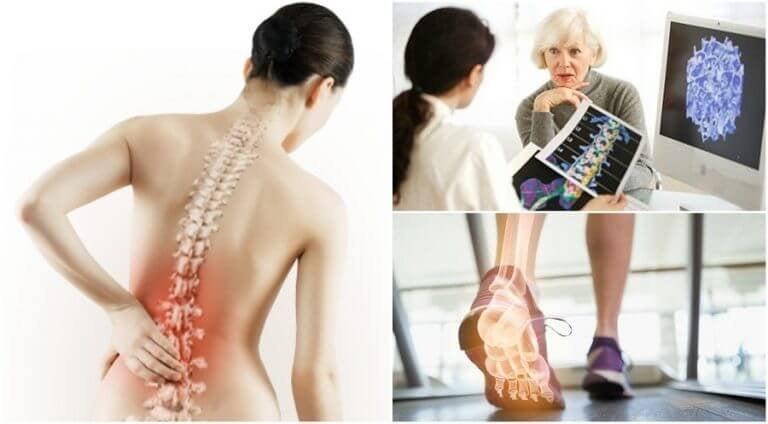 Fakta om osteoporos du bör känna till