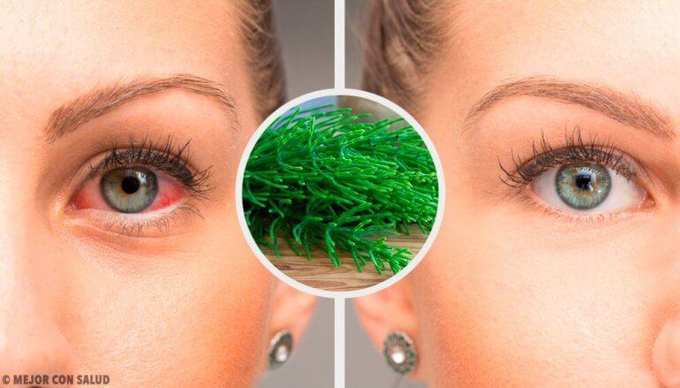tecken på ögoninflammation