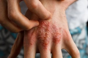 Behandla psoriasis naturligt