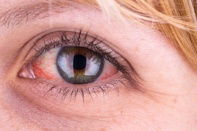 Vattenbehandling för ögonen
