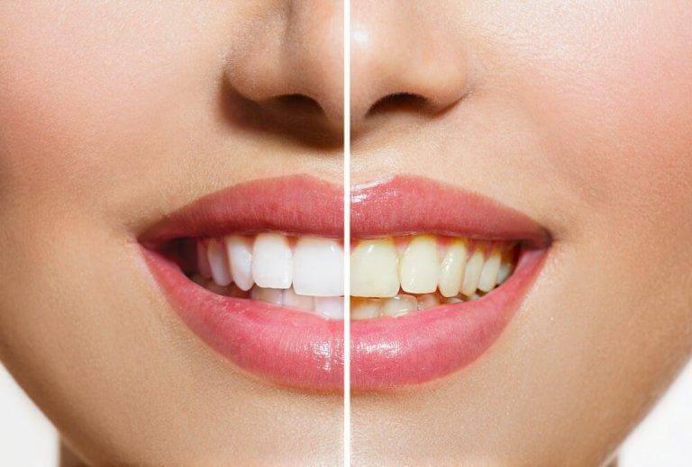 få vitare tänder