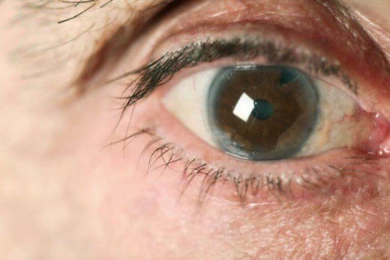 Det finns flera naturliga botemedel som komplement till glaukombehandling