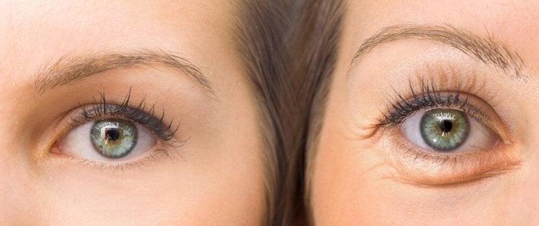 Hängiga ögonlock: motverka dem med 5 naturliga huskurer