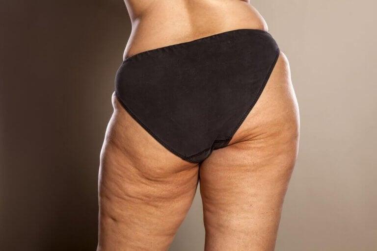 Lår med celluliter