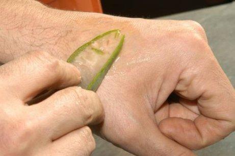 Aloe vera återgenererar huden<