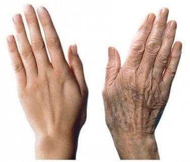 Så tar du hand om åldrande händer