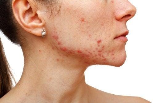 Kvinna med akne i ansiktet.