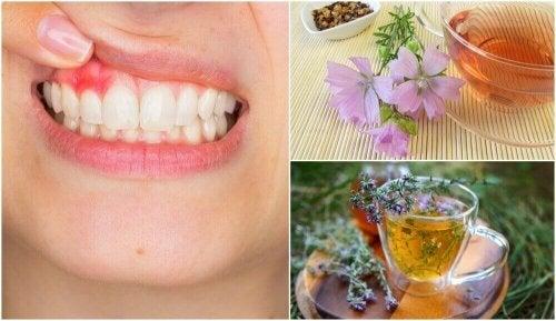 5 naturliga hemmakurer mot gingivit