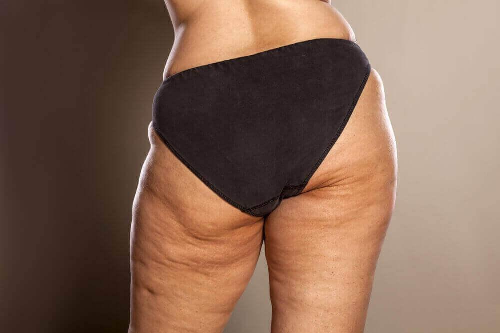 Ben med celluliter