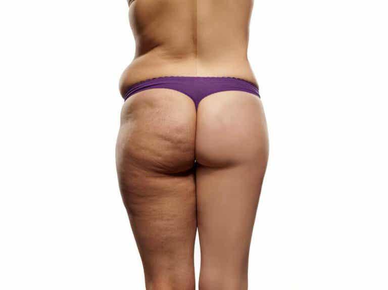 Prova denna perfekta diet mot celluliter