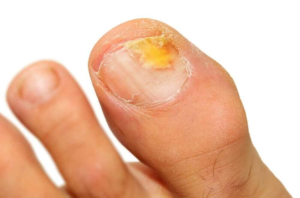 varför får man nagelsvamp