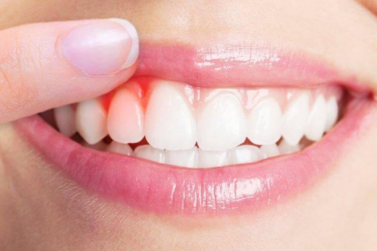 bli av med tandköttsinflammation