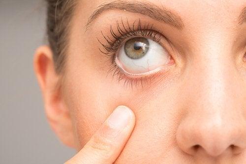 Kvinna med finger vid ögat.
