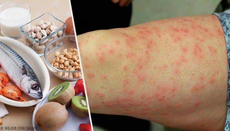 De vanligaste livsmedelsallergierna och bra alternativ