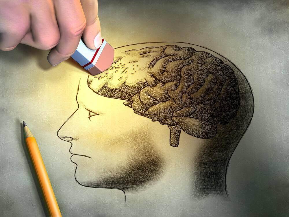 Skiss av en hjärna