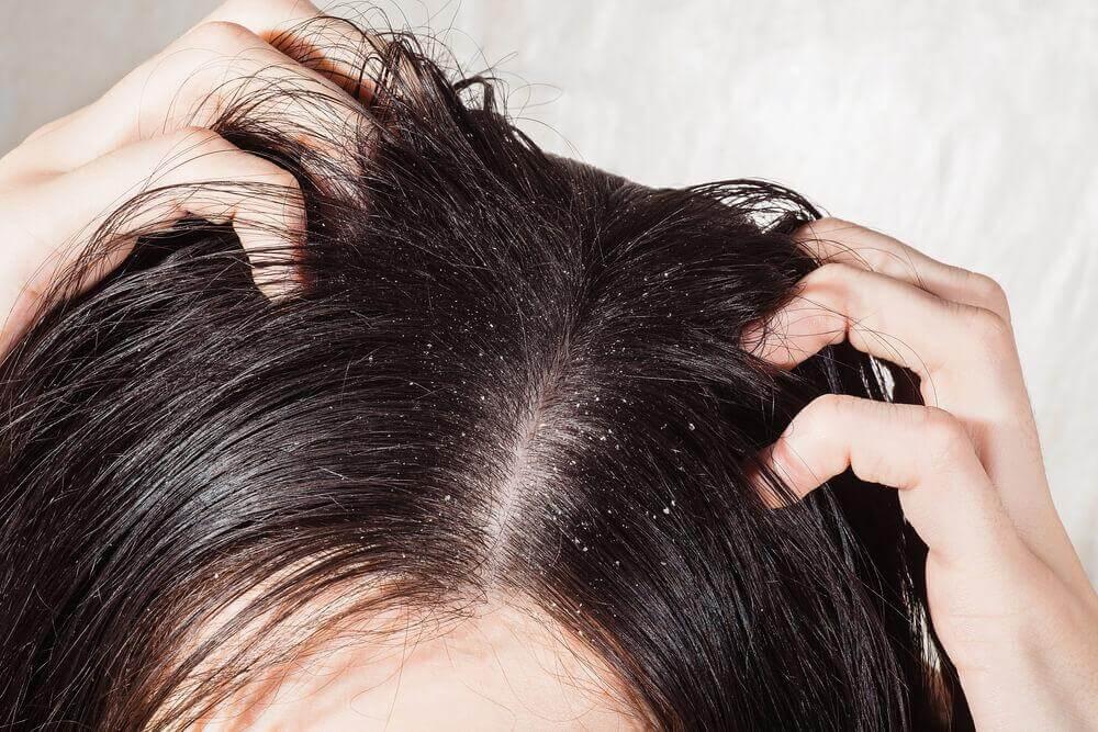 De 6 bästa botemedlen mot hårbottensvamp