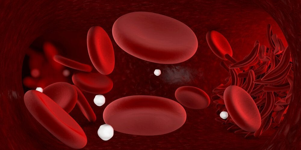 Tio livsmedel du borde äta för att bekämpa anemi