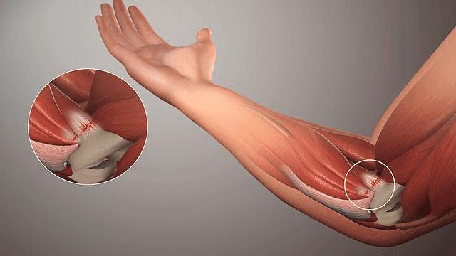 Flera naturliga behandlingar för tendinit