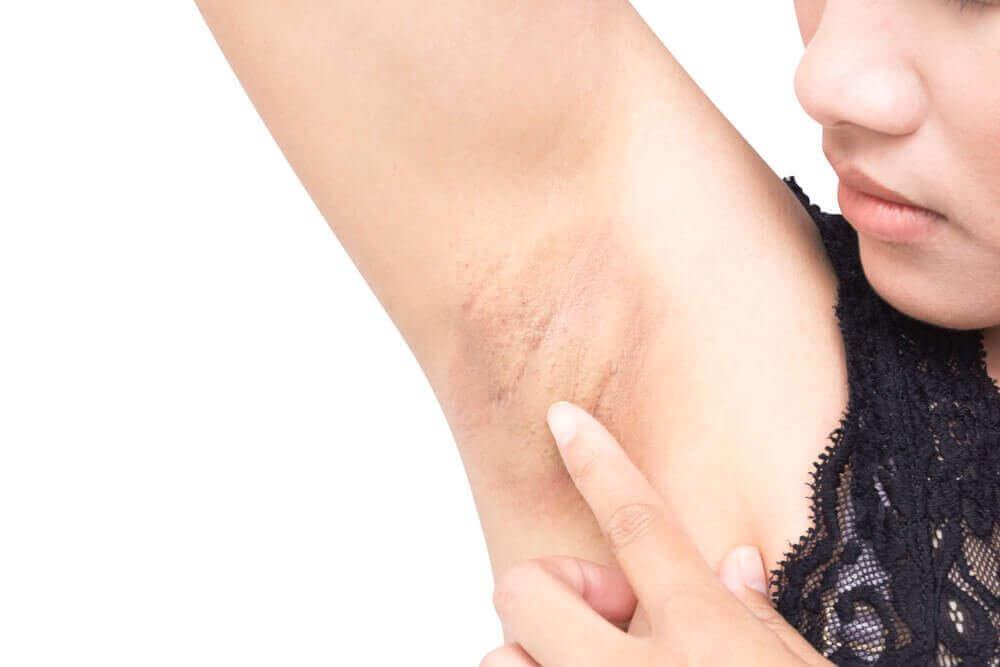 mörk hud i armhålan