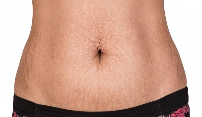 Naturliga behandlingar för att motverka hudbristningar