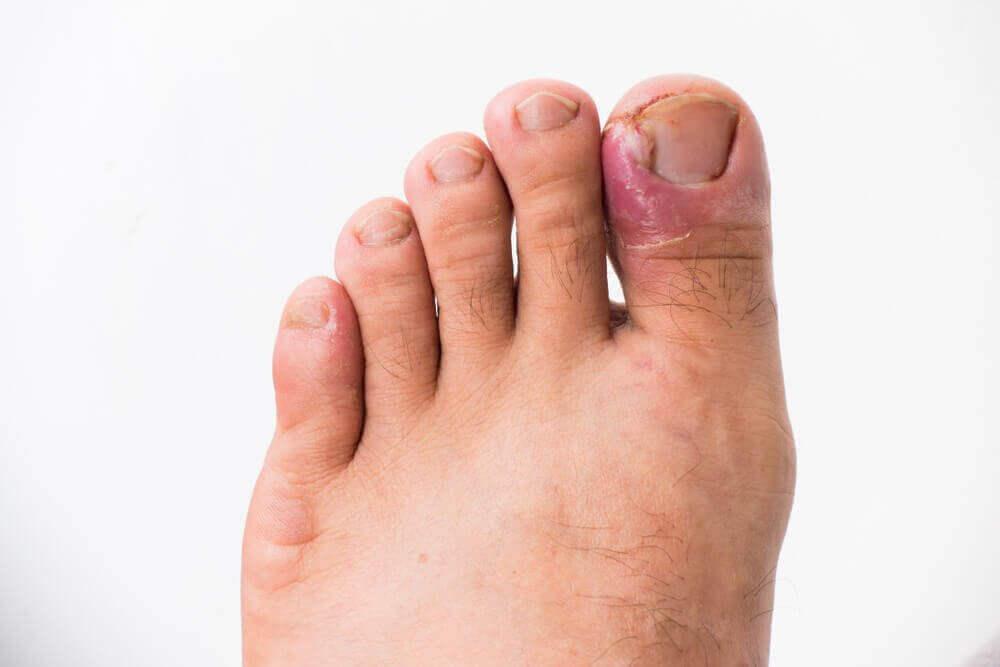 hur blir man av med nageltrång