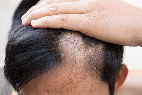 Alopeci