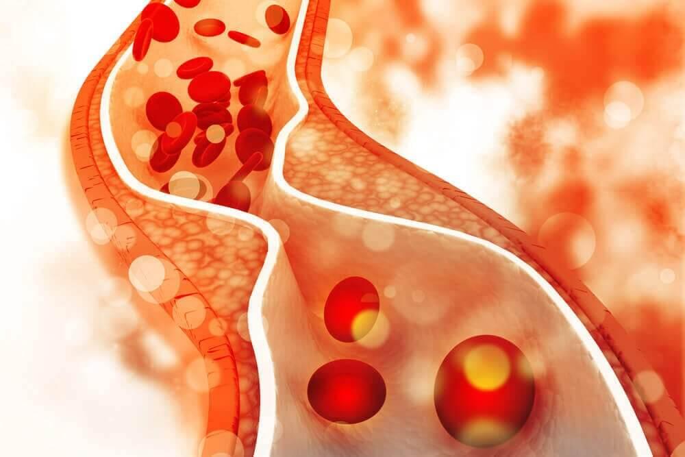 Har du höga kolesterolvärden bör du följa de kostråd du får