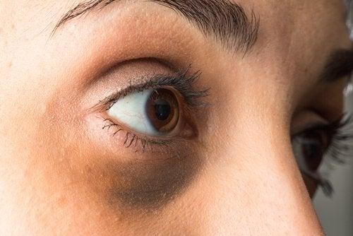 Bleka mörka ringar under ögonen med eteriska oljor