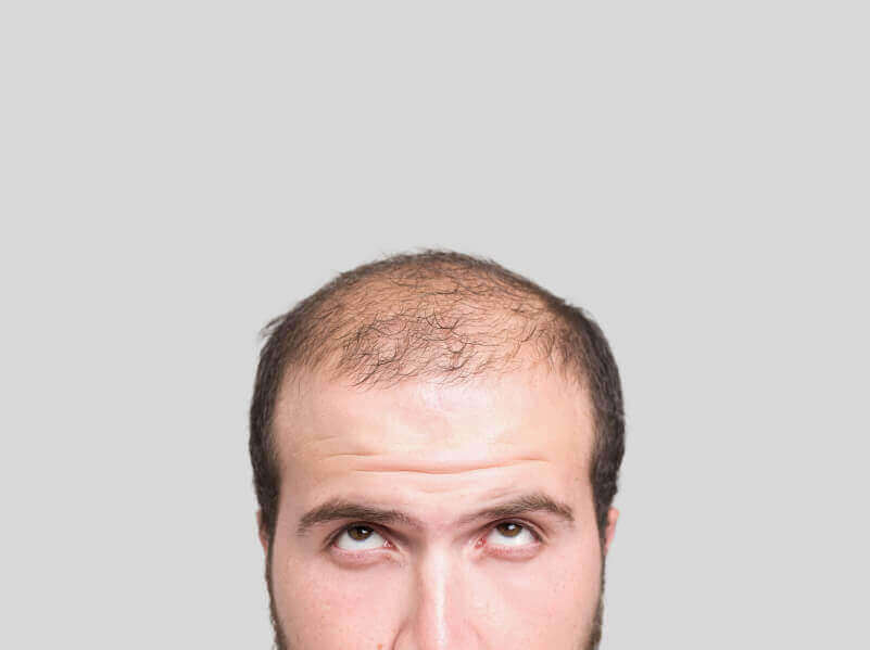 Tre naturliga huskurer för att behandla alopeci